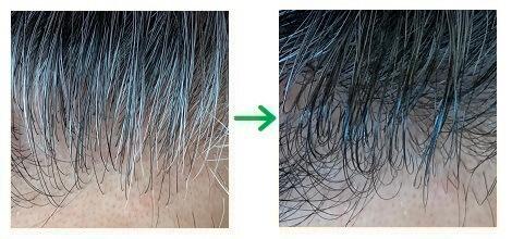 カラーオンリタッチ白髪かくしEXの仕上がり(生え際の白髪)