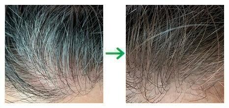 ダイソー白髪かくしファンデーションのブラウン色の仕上がり(生え際の白髪)